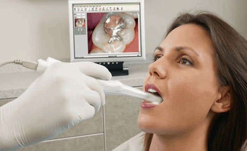 Dental Decay Detection