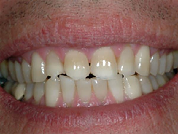 chipped-teeth-before
