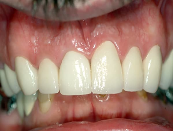 decaying-teeth-after