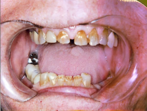Extremely Worn Teeth Before