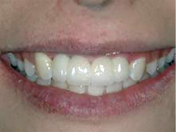 Front Teeth Lost Due to Trauma After