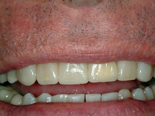 Missing and Misaligned Teeth After