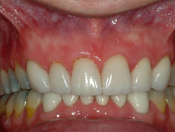 severely-worn-teeth-after