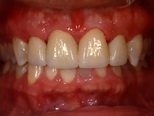 Stained and Decaying Teeth After