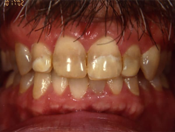 Stained and Decaying Teeth Before