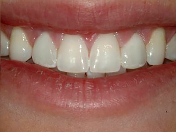 Undersized Lateral Incisors After