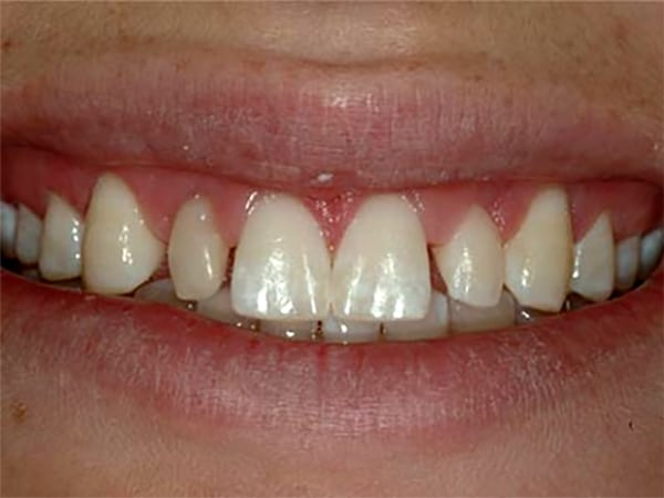Undersized Lateral Incisors Before